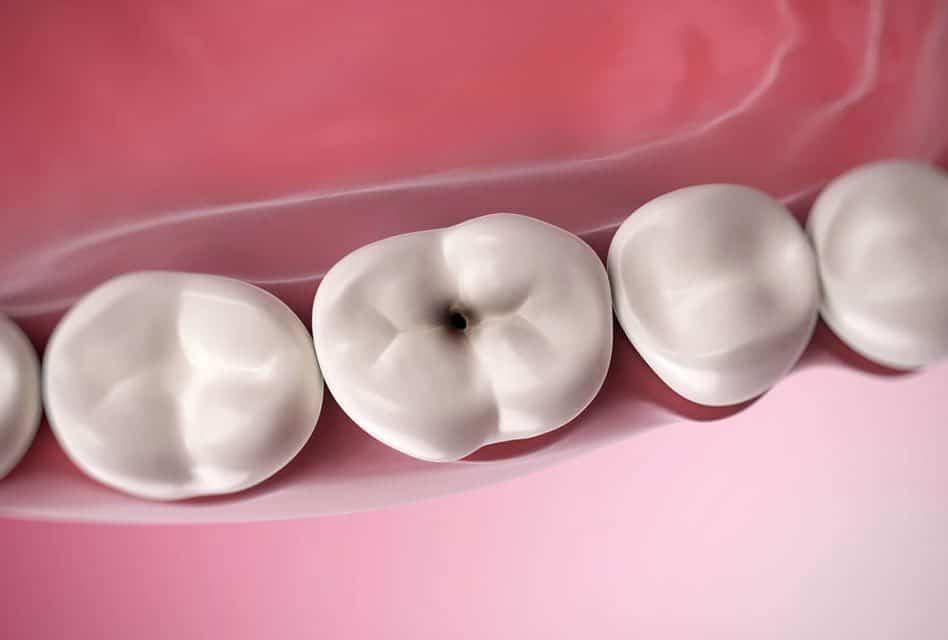 Raising Tooth Decay Awareness