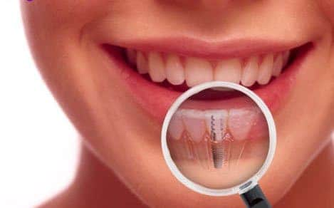 Getting To Know Dental Implants