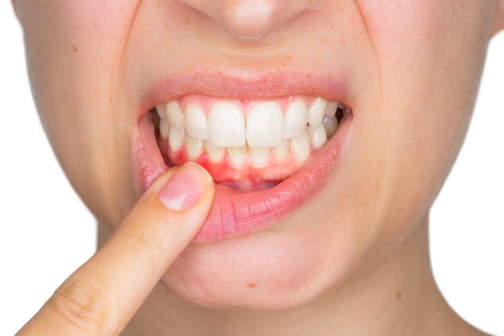 The Basics of Gum Disease